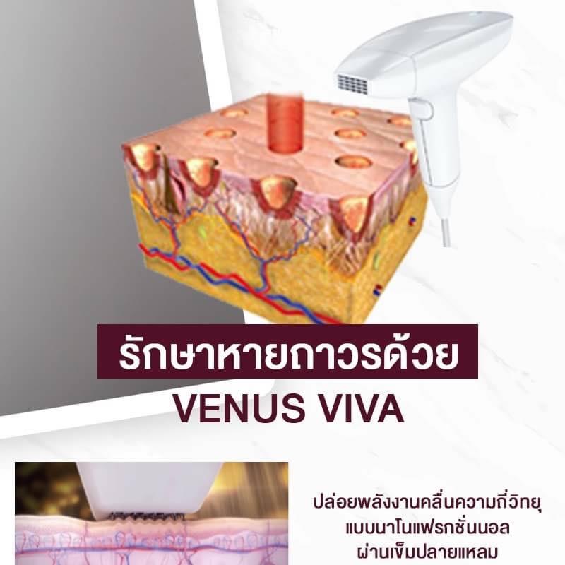 รักษารอยหายถาวร Venus Viva